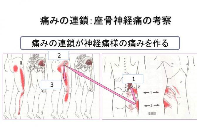 坐骨 神経痛 筋 トレ
