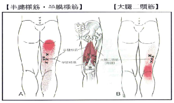裏 痛み の 膝